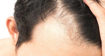 אלופציה פתרון ריביירה שיער