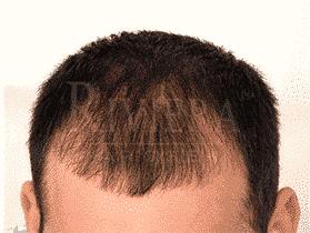לפני ריביירה ממלא שיער