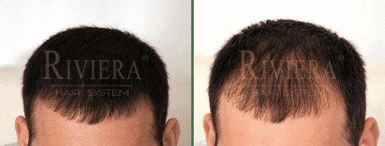 מעבה שיער דליל ריביירה