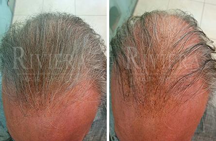 מעבה שיער דליל