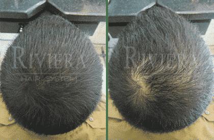 מילוי שיער שחור