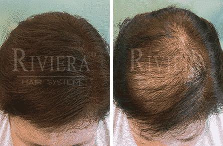ממלא שיער דליל ריביירה