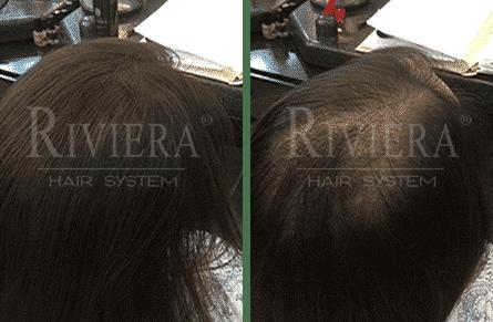 ממלא שיער שחור