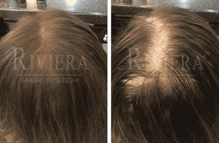 ממלא שיער שבילים רחבים