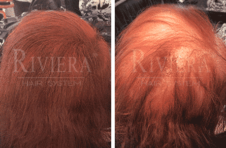 ממלא שיער אדום