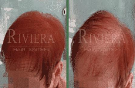 מעבה שיער אדום