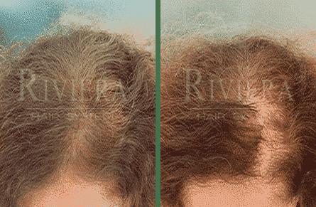 מעבה שיער מתולתל