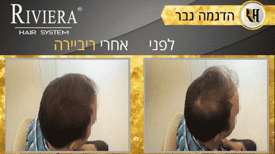 עיבוי שיער ריביירה