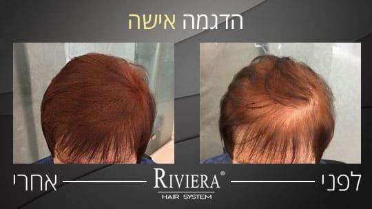 מילוי שיער ריביירה